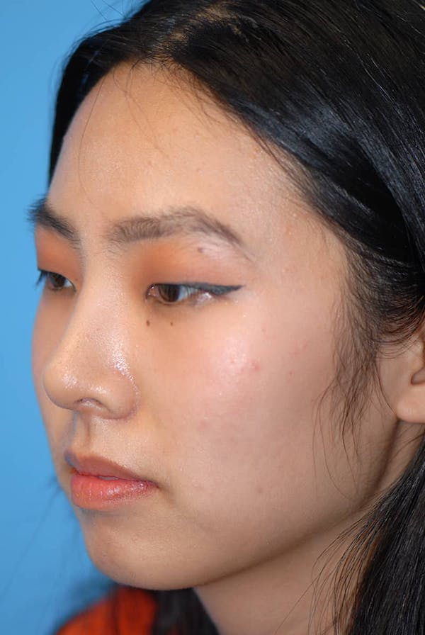 Rhinoplasty Gallery - Patient 5883817 - Image 4
