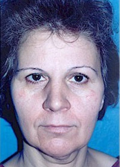 Facelift and Mini Facelift Gallery - Patient 5883821 - Image 1
