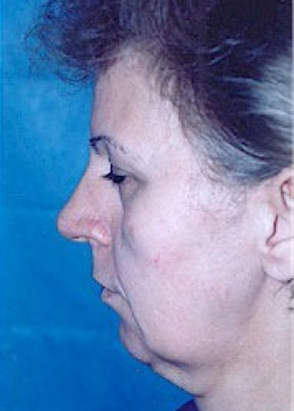 Facelift and Mini Facelift Gallery - Patient 5883821 - Image 3