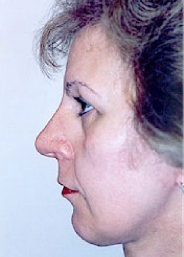 Facelift and Mini Facelift Gallery - Patient 5883821 - Image 4