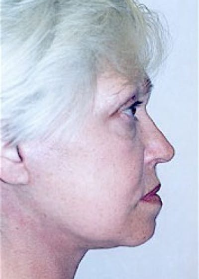 Facelift and Mini Facelift Gallery - Patient 5883825 - Image 21