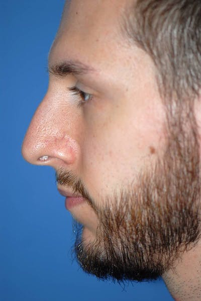 Rhinoplasty Gallery - Patient 5883826 - Image 1