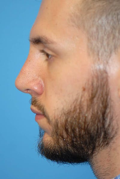 Rhinoplasty Gallery - Patient 5883826 - Image 14