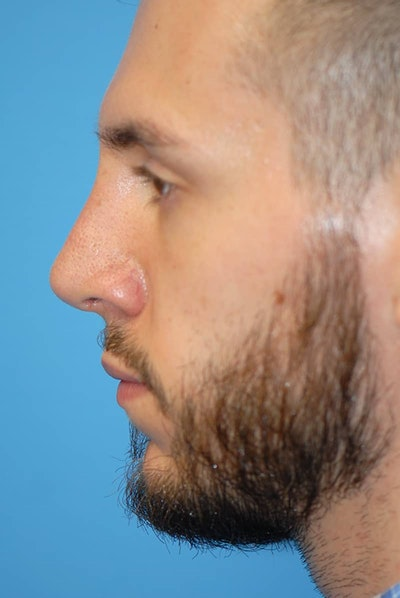 Rhinoplasty Gallery - Patient 5883826 - Image 2