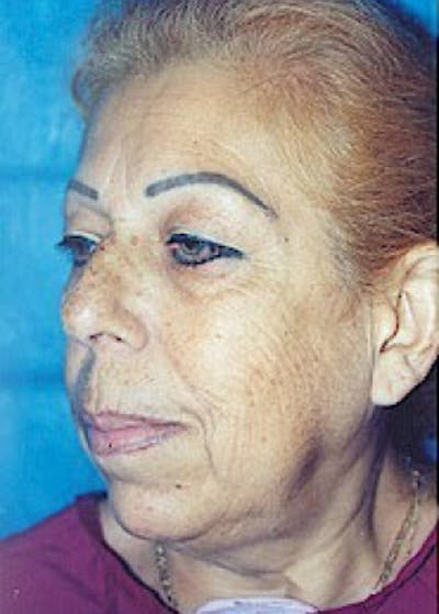 Facelift and Mini Facelift Gallery - Patient 5883830 - Image 1