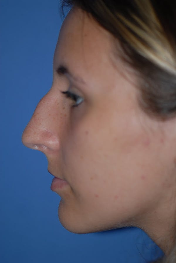 Rhinoplasty Gallery - Patient 5883835 - Image 1