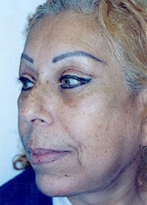 Facelift and Mini Facelift Gallery - Patient 5883830 - Image 2