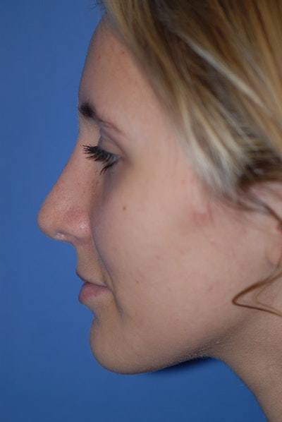 Rhinoplasty Gallery - Patient 5883835 - Image 2