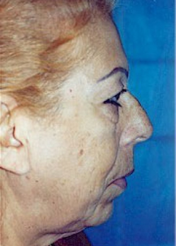 Facelift and Mini Facelift Gallery - Patient 5883830 - Image 3