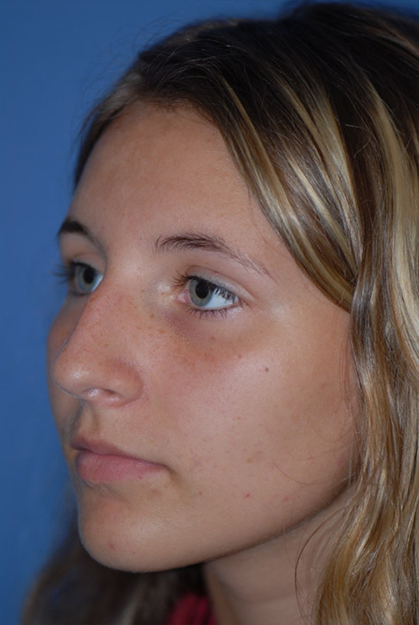 Rhinoplasty Gallery - Patient 5883835 - Image 3
