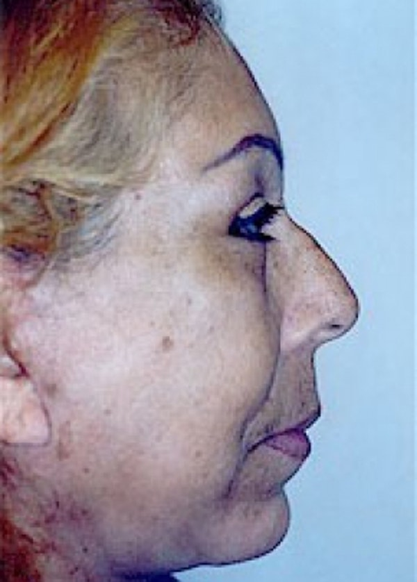 Facelift and Mini Facelift Gallery - Patient 5883830 - Image 4