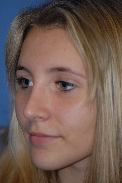 Rhinoplasty Gallery - Patient 5883835 - Image 4