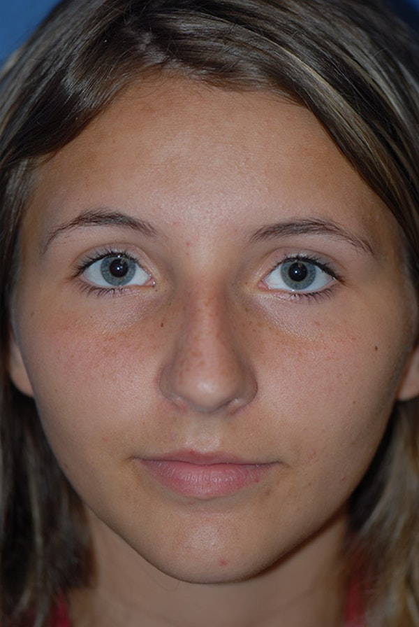 Rhinoplasty Gallery - Patient 5883835 - Image 5