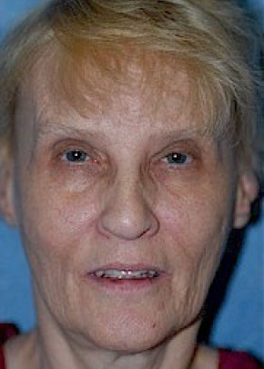 Facelift and Mini Facelift Gallery - Patient 5883836 - Image 1
