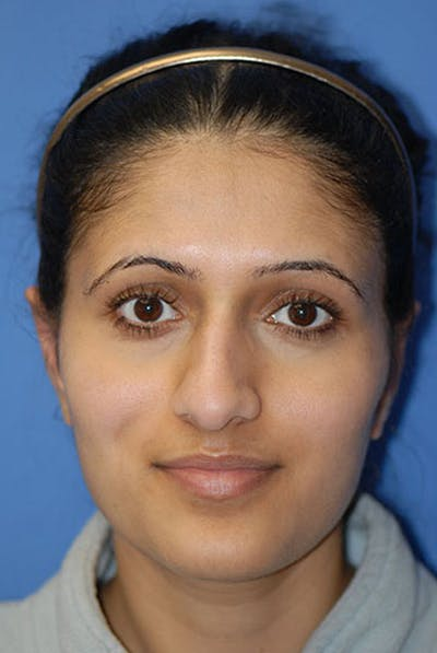 Otoplasty Gallery - Patient 5883832 - Image 1