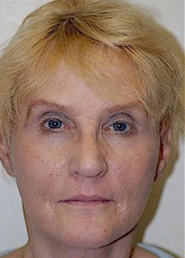 Facelift and Mini Facelift Gallery - Patient 5883836 - Image 2