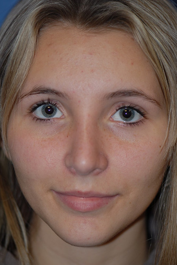Rhinoplasty Gallery - Patient 5883835 - Image 6