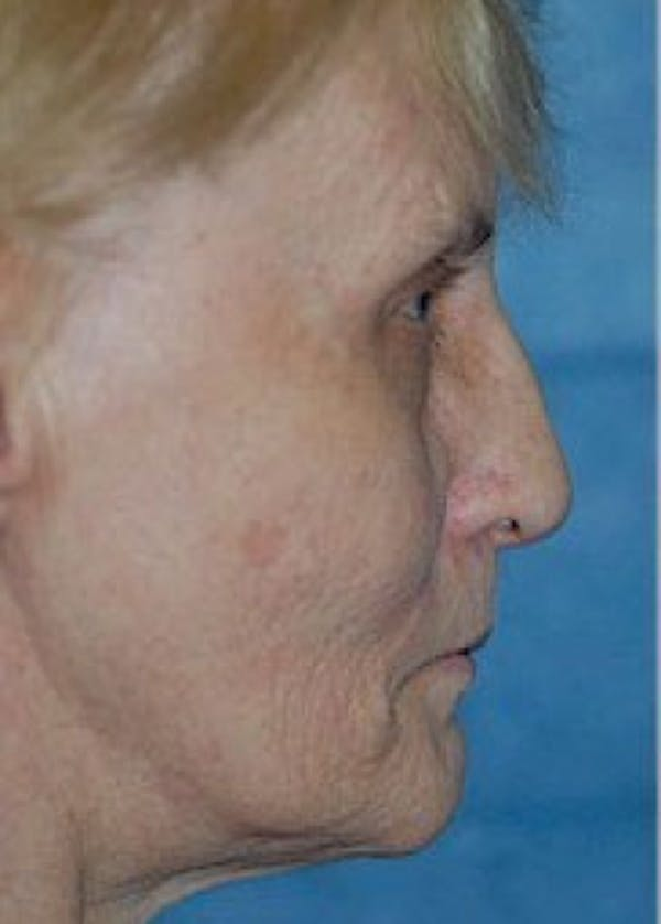 Facelift and Mini Facelift Gallery - Patient 5883836 - Image 3