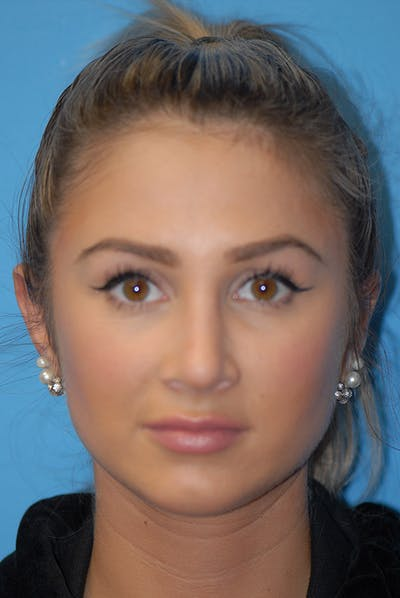 Otoplasty Gallery - Patient 5883834 - Image 2