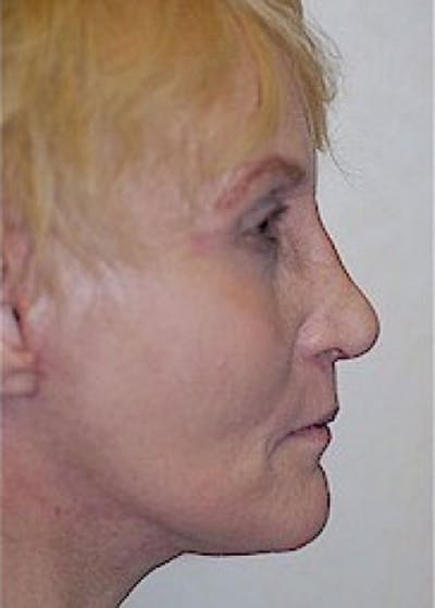 Facelift and Mini Facelift Gallery - Patient 5883836 - Image 4