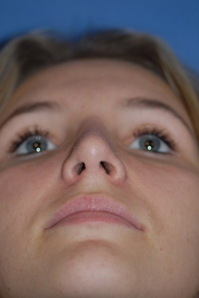 Rhinoplasty Gallery - Patient 5883835 - Image 8