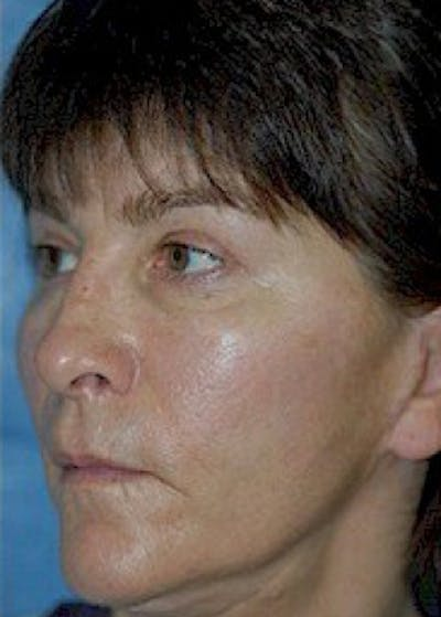 Cheeklift Threadlift Gallery - Patient 5883837 - Image 3
