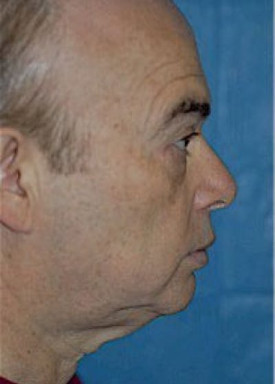 Facelift and Mini Facelift Gallery - Patient 5883840 - Image 1