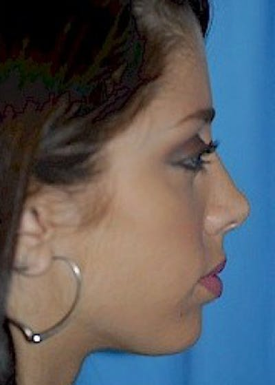 Chin & Cheek Implants Gallery - Patient 5883839 - Image 1