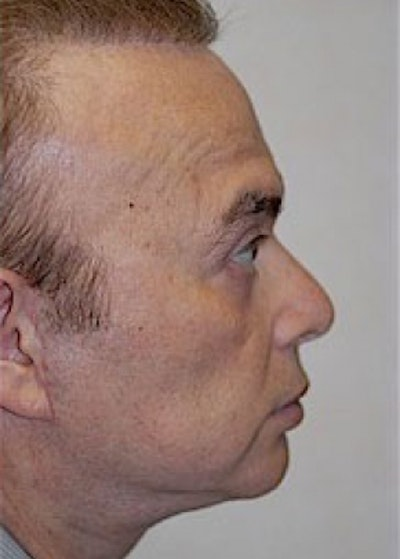 Facelift and Mini Facelift Gallery - Patient 5883840 - Image 2