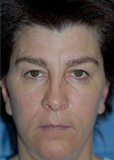 Cheeklift Threadlift Gallery - Patient 5883841 - Image 1