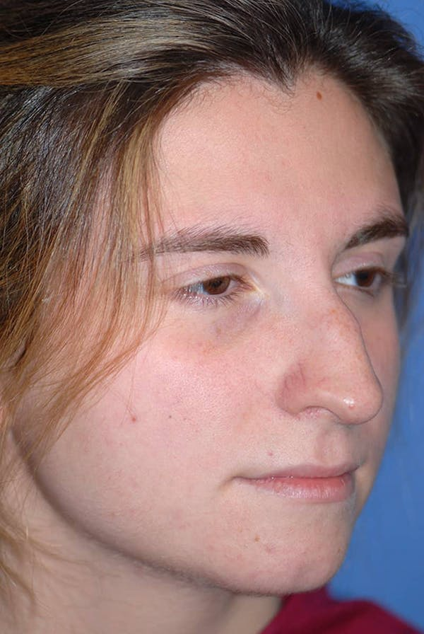 Rhinoplasty Gallery - Patient 5883848 - Image 3