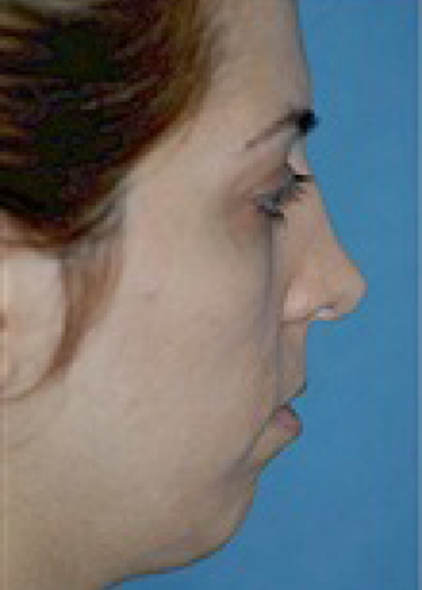 Chin & Cheek Implants Gallery - Patient 5883845 - Image 1