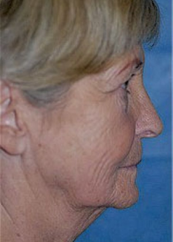 Facelift and Mini Facelift Gallery - Patient 5883844 - Image 1