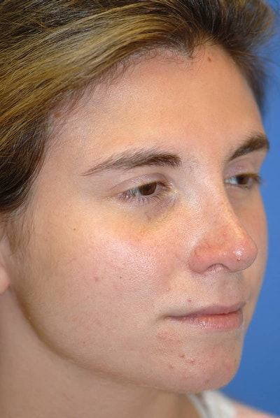 Rhinoplasty Gallery - Patient 5883848 - Image 4