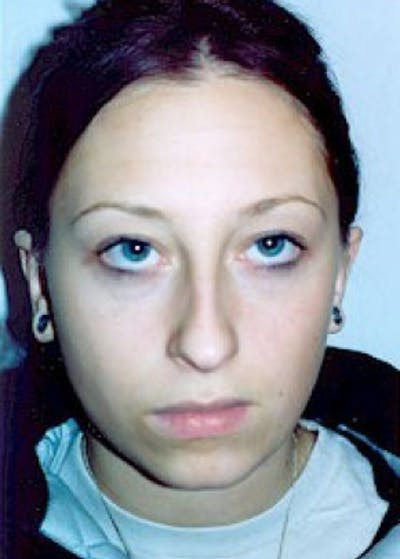 Otoplasty Gallery - Patient 5883843 - Image 4