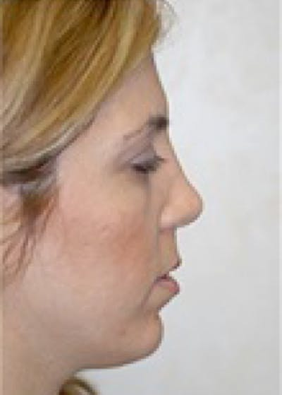 Chin & Cheek Implants Gallery - Patient 5883845 - Image 2