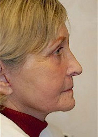 Facelift and Mini Facelift Gallery - Patient 5883844 - Image 2