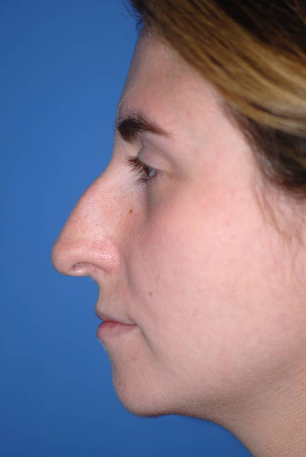 Rhinoplasty Gallery - Patient 5883848 - Image 5