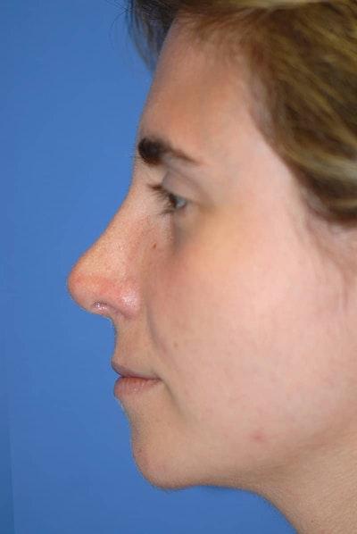 Rhinoplasty Gallery - Patient 5883848 - Image 6