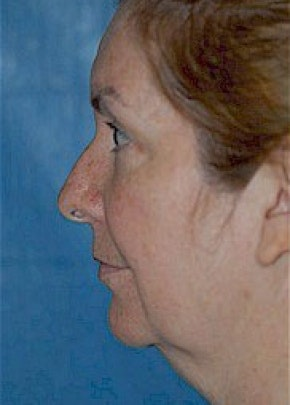 Facelift and Mini Facelift Gallery - Patient 5883847 - Image 1