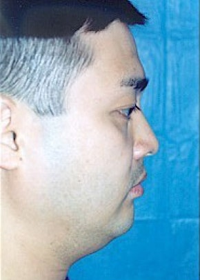 Chin & Cheek Implants Gallery - Patient 5883849 - Image 1