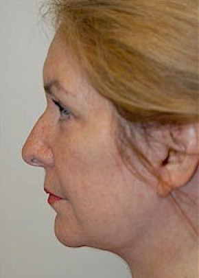 Facelift and Mini Facelift Gallery - Patient 5883847 - Image 2