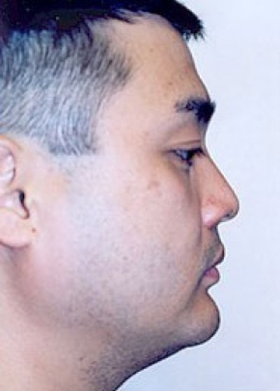 Chin & Cheek Implants Gallery - Patient 5883849 - Image 2