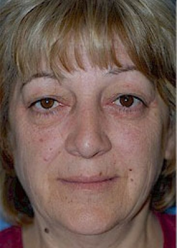 Facelift and Mini Facelift Gallery - Patient 5883867 - Image 1
