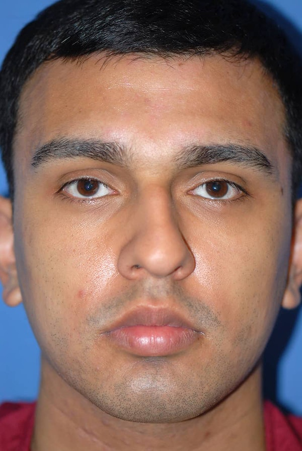 Rhinoplasty Gallery - Patient 5883869 - Image 1