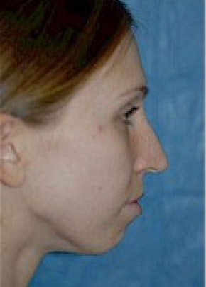 Chin & Cheek Implants Gallery - Patient 5883861 - Image 1
