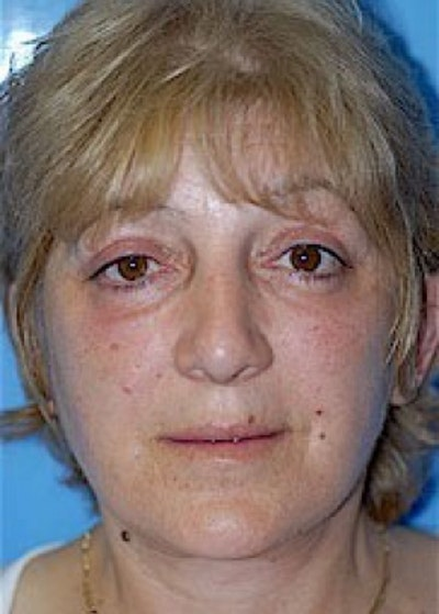 Facelift and Mini Facelift Gallery - Patient 5883867 - Image 2