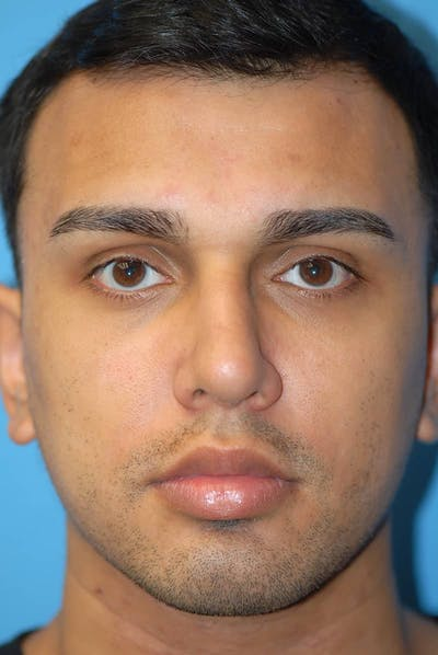 Rhinoplasty Gallery - Patient 5883869 - Image 2