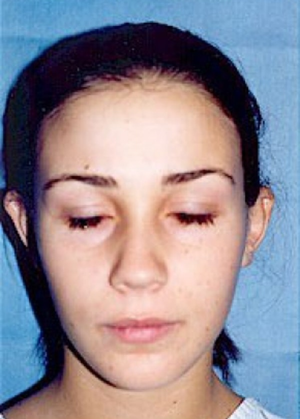 Otoplasty Gallery - Patient 5883863 - Image 1
