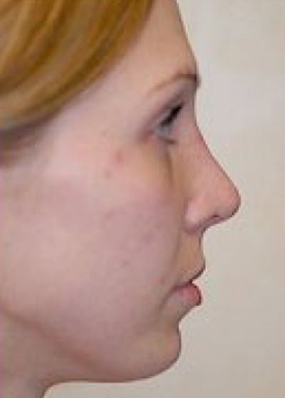 Chin & Cheek Implants Gallery - Patient 5883861 - Image 4